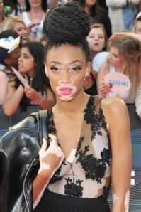 vitiligo-model-winnie-harlow-bei-den-mmva